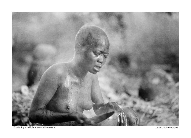 JLG photo N/B Femme ébouillantée N°4 - Tchalo, Togo